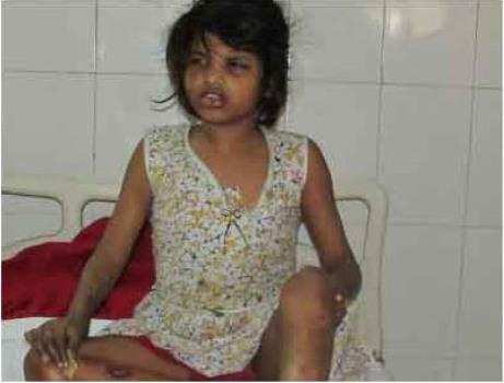 Autoridades rescatan a niña adoptada por monos en la India