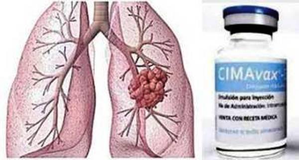Le vaccin thérapeutique cubain contre le cancer des poumons : des résultats encourageants