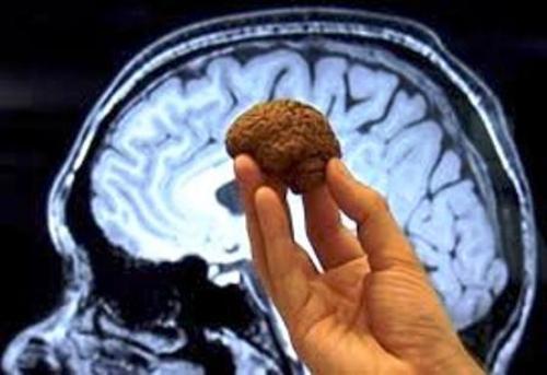 Comprueban beneficios del chocolate para el cerebro humano