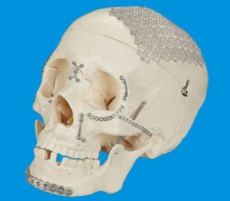 Especialistas suizos propician en Cuba actualización acerca del trauma cráneo maxilofacial