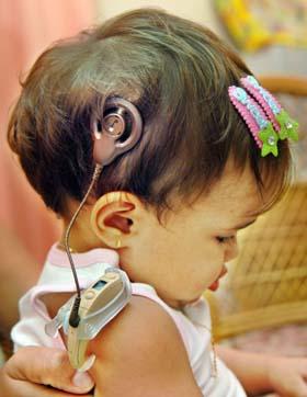 Cuba: exitoso desarrollo del programa gratuito de implantes cocleares