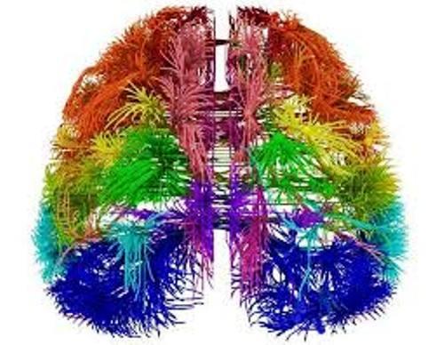 Diseñan un nuevo mapa del cerebro humano