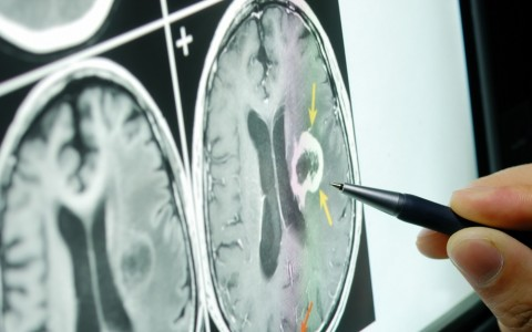 Neurology Institute Increases its Research