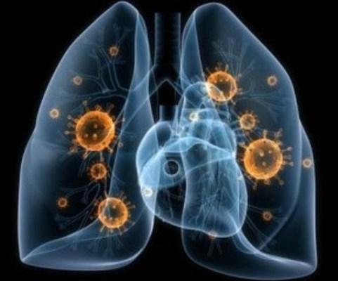 Consulta integral en Camagüey contra cáncer pulmonar reporta buenos resultados