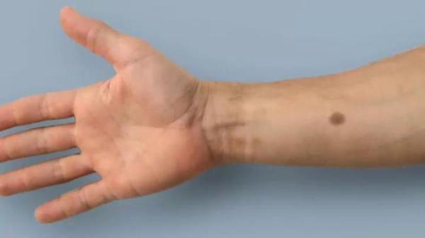 Tatuaje biomédico puede detectar el cáncer