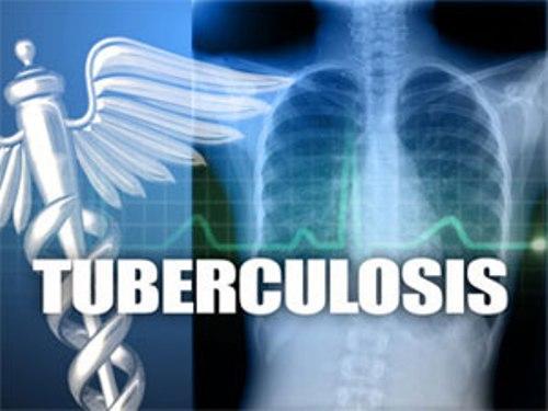 OMS demande la collaboration mondiale pour lutter contre la tuberculose