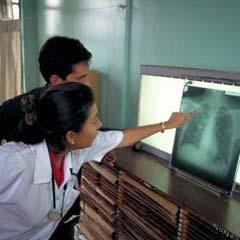Reconoce PNUD eficaz control de la tuberculosis en Cuba